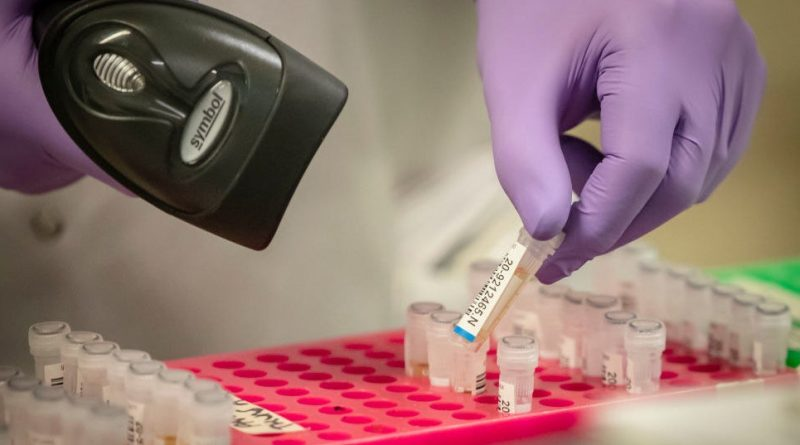The UK Missed Out On Thousands Of Extra Coronavirus Tests
